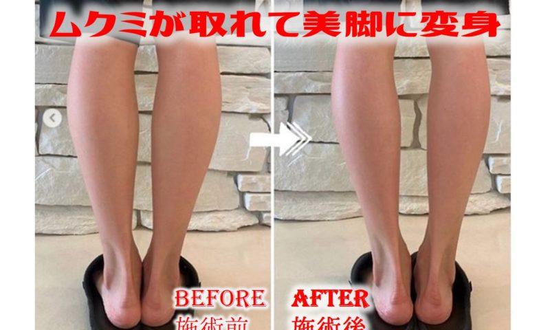 名古屋 筋膜リリース 小顔マッサージ 骨盤矯正 足のむくみ解消