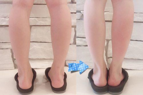 足のむくみ解消